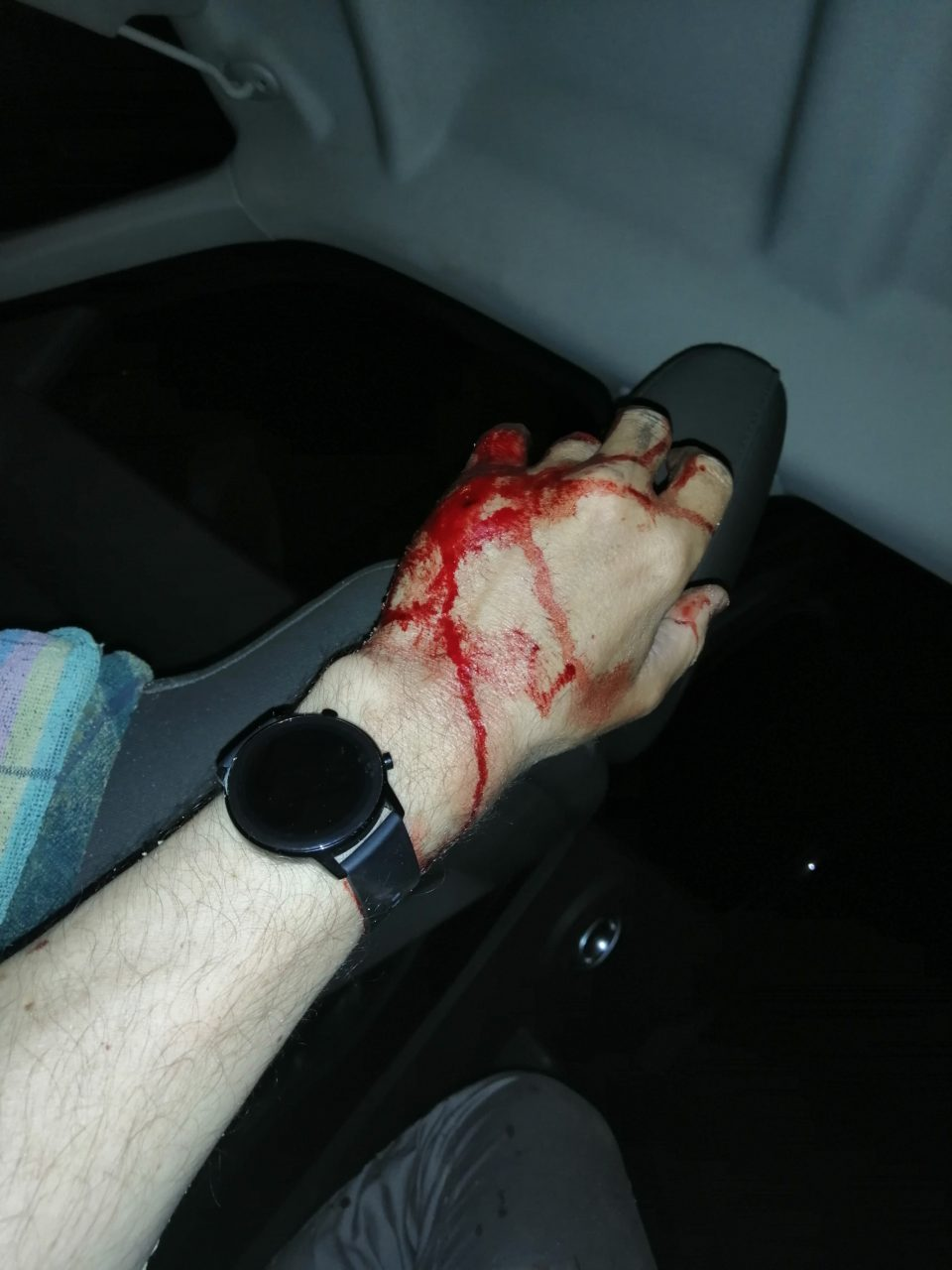 Я лежал на заднем сиденье и фотографировал свою руку, из которой шла кровь
